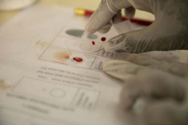 A technician at work in a GSK lab focused on malaria research. (Photo: GSK/Flickr)